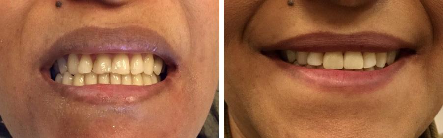 Client Satisfaction - Iona Dental